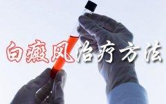 云南白癜风医院-昆明白癜风医院排名